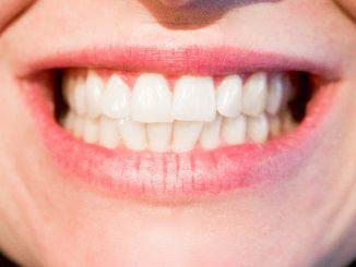 rage dents durée